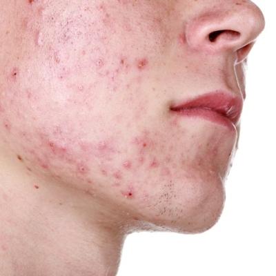 dermatologo acne