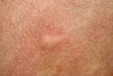Tratamiento de tumores de piel benignos y malignos