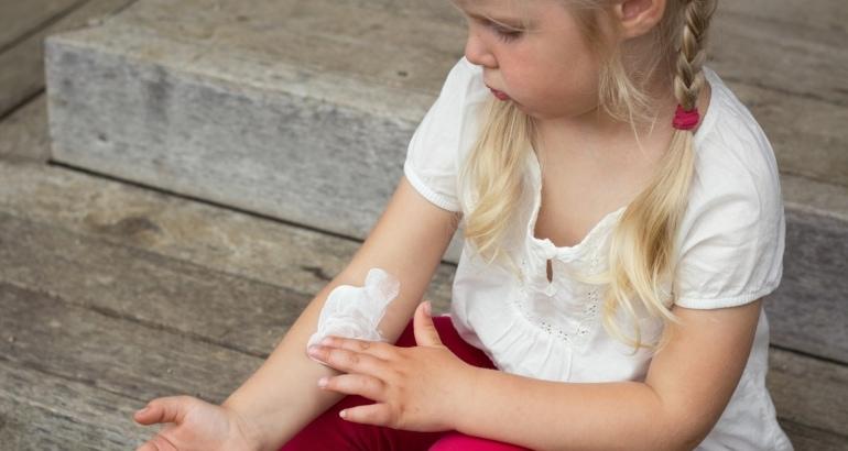 Quemaduras Solares en los Niños.