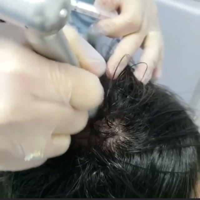 NANOPORE CAPILAR es el tratamiento para estimular el crecimiento de nuevo cabello y disminuir su caída, mejorando la calidad del pelo.NANOPORE CAPILAR es la introducción de las vitaminas, nutrientes, nanomoléculas e ingredientes activos necesarios en el folículo piloso para un adecuado crecimiento; mediante microperforaciones controladas e imperceptibles para el paciente.Además permite introducir dutasteride como bloqueador de la conversión periférica de andrógenos muy útil en el tratamiento de alopecia androgenética. #nanopore #cuerocabelludo #piel #saludentupiel #cabello #calvicie