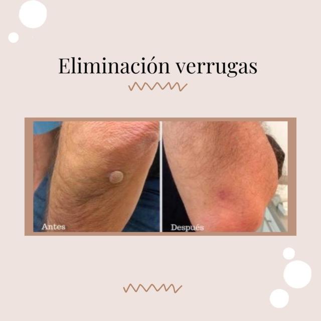 Los tratamientos más efectivos para eliminar las verrugasLas verrugas de la piel y las verrugas de los genitales se eliminan de diferentes maneras. Las verrugas genitales tienen varias opciones de tratamiento , mas específicos para ese tipo de verruga específica.Para las verrugas comunes de la piel, hay diversos métodos que se aplican según la gravedad, tamaño y lugar, y tipo de verruga, así como la edad del paciente, pues en los niños somos mucho más cuidadosos.La crioterapia, un tipo de tratamiento basado en la utilización de nitrógeno líquido o dióxido de carbono sólido con el que se congela el tejido de la verruga y en unos días desaparece, es uno de los tratamientos mas utilizados y efectivos, por su rapidez de acción y facilidad de aplicación. En los niños se suele utilizar anestesia tópica en crema previa a su utilización.Asimismo, están los tratamientos tópicos a base de medicamentos que contienen ácido salicílico para eliminar las múltiples capas de queratina de la verruga. El medicamento ácido salicílico se aplica con regularidad y los estudios demuestran que es más eficaz cuando se combina con la crioterapia. Otros ácidos que se pueden aplicar sobre la superficie de la verruga son el ácido tricloroacético o bicloroacético.Otros tratamientos menos utilizados, pero efectivos, son el tratamiento del láser, con los procedimientos del láser de CO2, el láser Erbium-YAG y el láser de Neodimio-YAG .Además está la terapia inmunológica, que intenta estimular el propio sistema inmunológico y combatir las verrugas virales y tratamientos con inmunomoduladores topicos.La cirugía menor para extirpar la verruga, es uno de uno de los métodos menos empleados hoy en día.Solo por citas: +1 (809) 685-8478