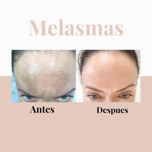 El melasma es un tipo de hiperpigmentación corriente en mujeres, especialmente durante y después del embarazo. Aparece en forma de grandes manchas oscuras sobre la cara, aunque también pueden afectarse otras partes del cuerpo. Afortunadamente existen diversos tratamientos que garantizan la eliminación de los mismos. Haz una cita al llamar al +1 (809) 685-8478 #dermatologia #dermatologo