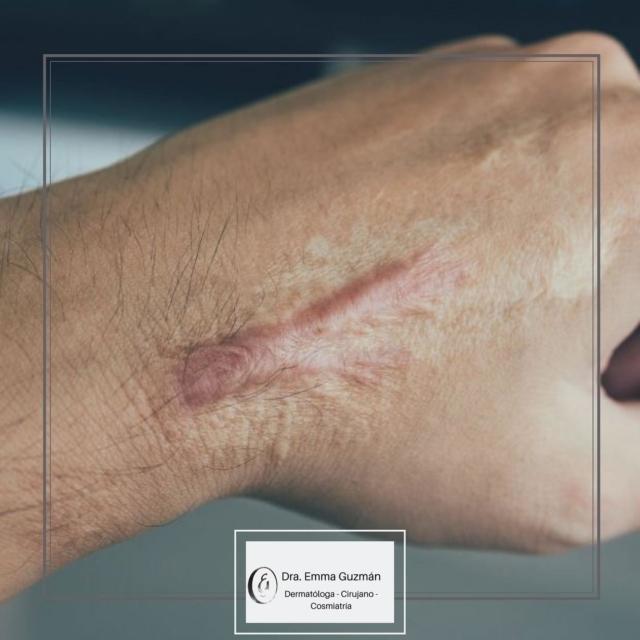 La cicatriz por queloide se produce por un crecimiento exagerado del tejido de cicatrización que rebasa los bordes de la herida original.  Los queloides son más comunes en personas con factores genéticos, ascendencia afroamericana o asiática.  Aquellos con tendencia a desarrollarlas deben evitar los piercings en esta zona y tratarse tempranamente cualquier cicatriz que empiece a crecer después de algún trauma que puede ir desde granitos, vacunas hasta heridas quirúrgicas.  .  La cirugía es posible en caso de queloides refractarios a otros tratamientos pero tiene altas probabilidades de recurrencia, por lo que es necesario seguimiento estrecho por un especialista en #dermatología y utilizar métodos para prevenir estas recurrencias.   Afortunadamente existen diversos tratamientos para eliminarlas o mejorar su apariencia. #pielsaludable #piel #skin