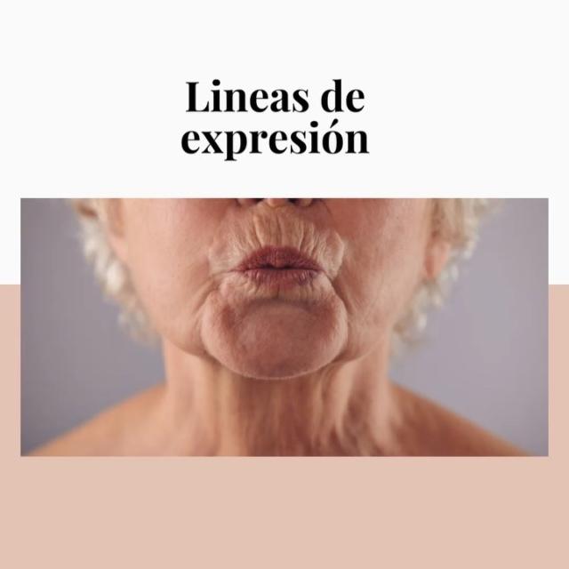 """Estas líneas aparecen con el paso de los años... algunas personas creen que se debe al movimiento constante de la boca al fumar, sonreír o realizar """"muecas"""" al hablar pero la verdad es que se debe a un factor hereditario. ¿Corregirlas? Se necesita visitar al dermatólogo para una evaluación de la piel. 😉 #Dermatologa #Dermatologia #antiaging #Piel #Salud #Skin #HealtSkin #Tan #Dermatology #Arrugas #SkinCancer"""