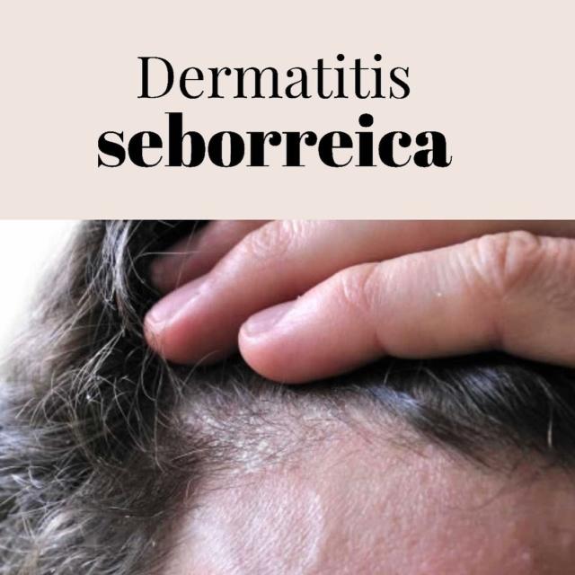 La dermatitis seborrea (caspa) es una afección de la piel que ocasiona áreas escamosas y piel roja, particularmente en el cuero cabelludo pero también puede aparecer en zonas grasosas del cuerpo, como la cara, la parte superior del pecho y la espalda. . . .  Acude a tu dermatólogo para un diagnostico y tratamiento correcto ya que es una condición 100% tratable.  #Dermatologia #salud #saludentupiel