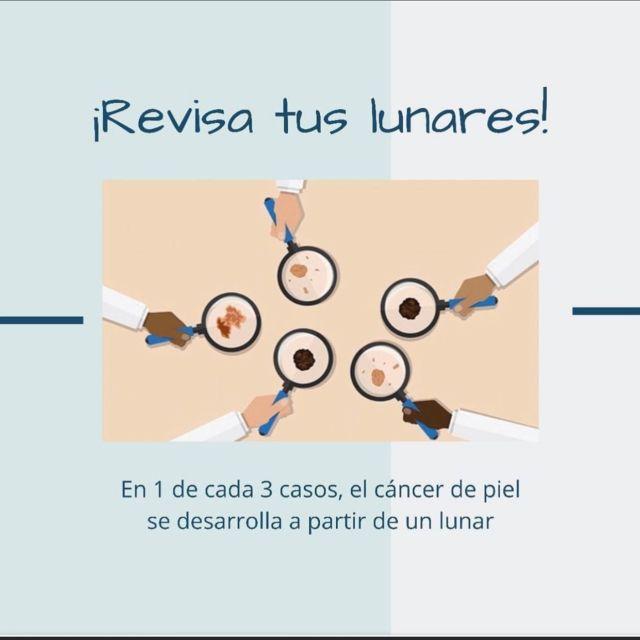 La mayoría de las personas tienen lunares, y casi todos son inofensivos. Sin embargo, es importante reconocer los cambios en un lunar (como su tamaño, forma, color, o textura), que pueden sugerir que un melanoma se está desarrollando.   #Piel #CáncerDePiel #Piel #Cancer #lunares
